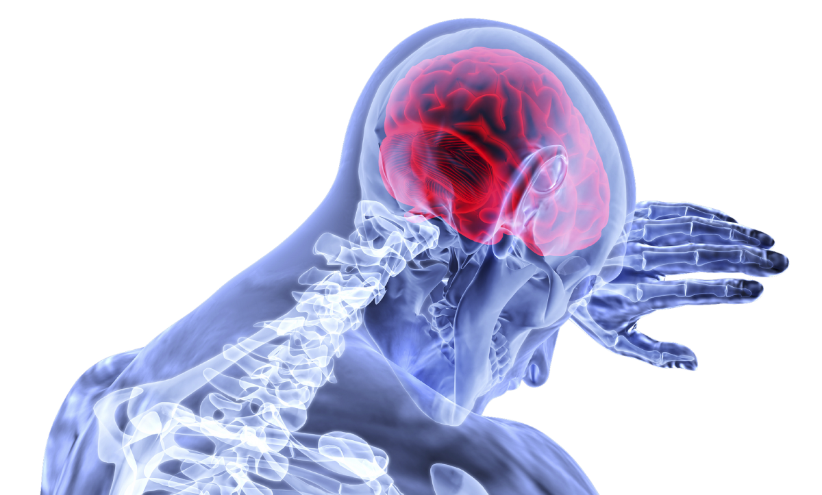 The True Cost of Traumatic Brain Injuries in San Diego